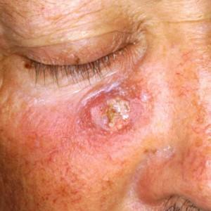 Plaveiselcelcarcinoom-300x300